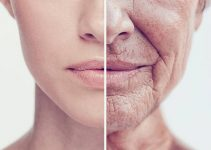 Aging Skin – The Different Kind of Indicators