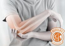 Ostelife Against Pain – Comfort & Free Movement