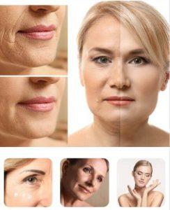 anti-aging, wrinkles